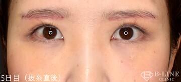 B-LINE CLINICの目元の整形、くま治療の症例写真[アフター]