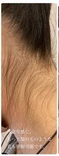 ロレシー美容クリニック 心斎橋駅前院の医療脱毛の症例写真[ビフォー]