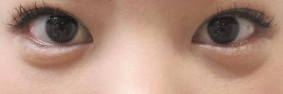 涙袋(目袋)形成:ヒアルロン酸注入の症例写真[アフター]