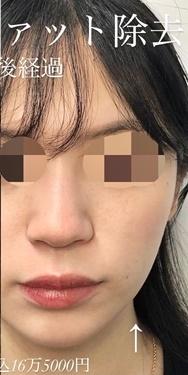 ルラ美容クリニックの症例写真[アフター]