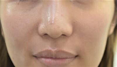 20代女性 鼻尖縮小(PDSプレート+クローズ法 鼻翼縮小の症例写真[アフター]