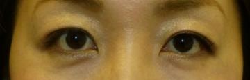 さやか美容クリニック・町田の目・二重整形の症例写真[ビフォー]