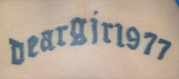 心斎橋コムロ美容外科クリニックのタトゥー除去(刺青・入れ墨を消す治療)の症例写真