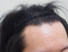 アスク井上クリニック(自毛植毛・薄毛治療 専門)の植毛・自毛植毛の症例写真[アフター]
