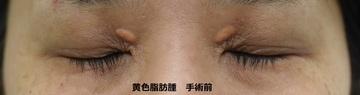 のホクロ除去・あざ治療・イボ治療の症例写真