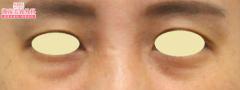 湘南美容クリニック 熊本院の目・二重整形の症例写真[ビフォー]