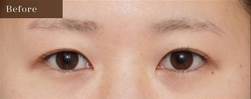 アーククリニックの目・二重整形の症例写真[ビフォー]