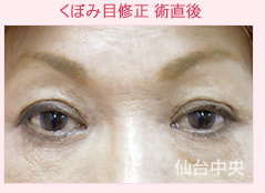仙台中央クリニックの目元の整形、くま治療の症例写真[アフター]