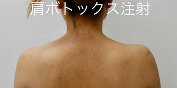 ルラ美容クリニック高田馬場院のその他の美容皮膚科治療の症例写真[アフター]