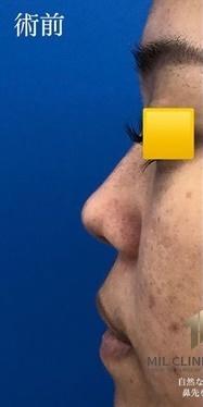MIL CLINIC OSAKA(ミルクリニック)の鼻の整形の症例写真[ビフォー]