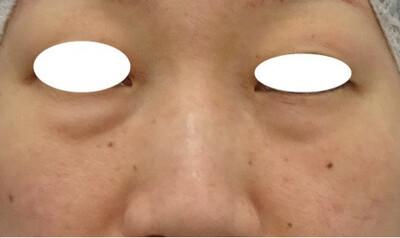 目の下のたるみ取り+コンデンスリッチファット(脂肪注入)[ビフォー]