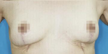 大塚美容形成外科 東京大塚院の豊胸・胸の整形の症例写真[アフター]