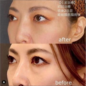 東京美容外科 福岡院の目元整形・クマ治療の症例写真