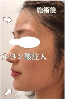 額・アゴのヒアルロン酸注入の症例写真[アフター]