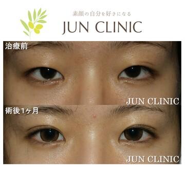 JUN CLINIC ジュンクリニックの目・二重の整形の症例写真