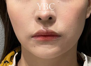 YBC横浜美容外科 大宮院の顔のしわ・たるみの整形の症例写真[ビフォー]