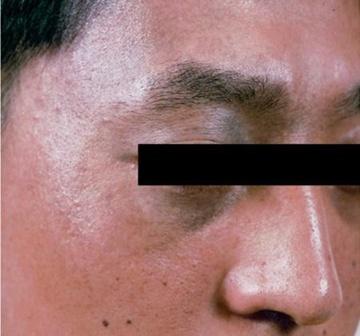 よだ形成外科クリニックのホクロ除去・あざ治療・イボ治療の症例写真[アフター]