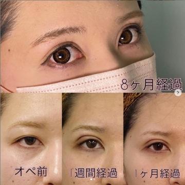 東京美容外科 秋田院の目・二重整形の症例写真