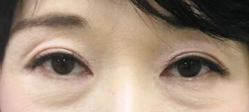 大塚美容形成外科・歯科の症例写真[アフター]