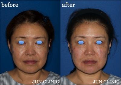 ヒアルロン酸リフトアップ  の症例写真