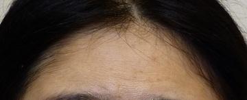 さやか美容クリニック・町田の顔のしわ・たるみの整形の症例写真[アフター]