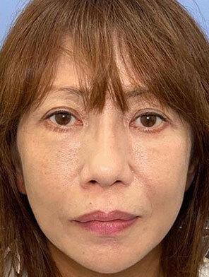 湘南美容クリニック 金沢院の顔のしわ・たるみの整形(リフトアップ手術)の症例写真[アフター]