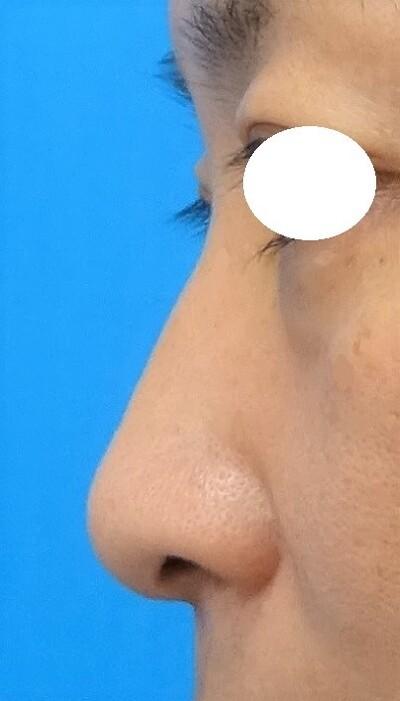 隆鼻術 クリアナチュラル プロテーゼの症例写真[ビフォー]