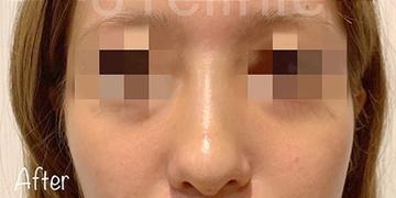 81clinicの鼻の整形の症例写真[アフター]