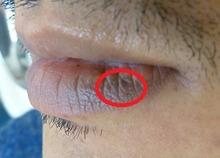 くちびるのホクロ治療の症例写真[ビフォー]