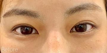 ルラ美容クリニック 高田馬場院の目・二重の整形の症例写真[ビフォー]