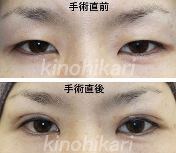 樹のひかり 形成外科・皮ふ科の目・二重の整形の症例写真