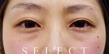 SELECT CLINIC (セレクトクリニック)の目元の整形、くま治療の症例写真[ビフォー]