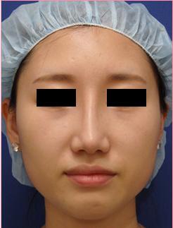 ■隆鼻術+鼻尖拳上形成術[アフター]