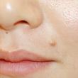 大山皮膚科の症例写真[ビフォー]