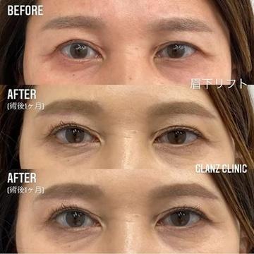 GLANZ CLINIC (グランツクリニック)の目元整形・クマ治療の症例写真