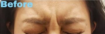 金山美容クリニックの顔のしわ・たるみの整形の症例写真[ビフォー]