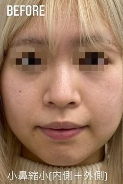 GLANZ CLINIC (グランツクリニック)の鼻の整形の症例写真[ビフォー]
