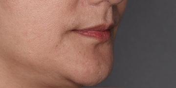 SELECT CLINIC(セレクトクリニック)の口もと、唇の整形の症例写真[ビフォー]
