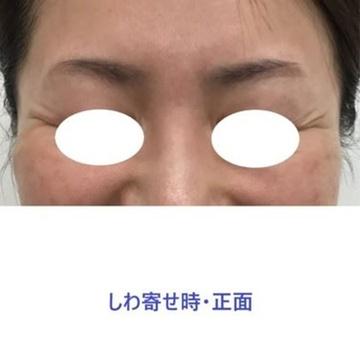 東郷美容形成外科 福岡の顔のしわ・たるみの整形(リフトアップ手術)の症例写真[ビフォー]