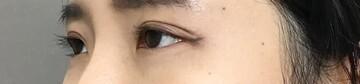 TCB東京中央美容外科 堺院の目・二重の整形の症例写真[アフター]