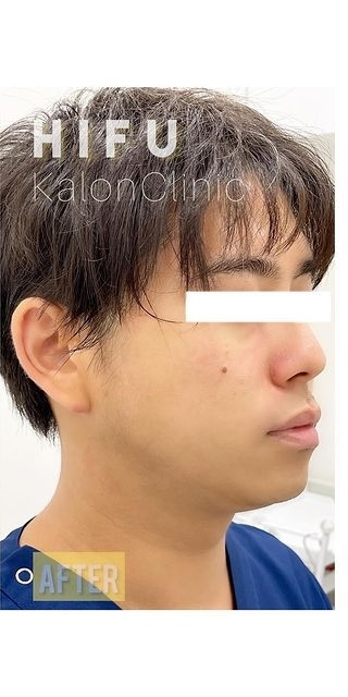 Kalon Clinic(カロンクリニック)の症例写真[アフター]