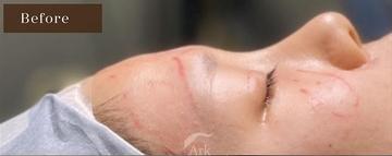 アーククリニックの輪郭・顎の整形の症例写真[ビフォー]