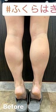 ルラ美容クリニック 高田馬場院の痩身、メディカルダイエットの症例写真[ビフォー]