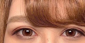 湘南美容クリニック 新潟院の目・二重の整形の症例写真[アフター]