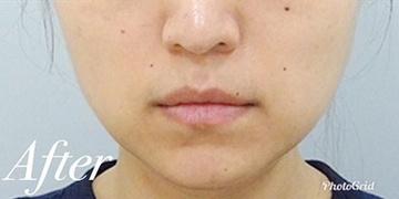 表参道スキンクリニックの顔の整形(輪郭・顎の整形)の症例写真[アフター]