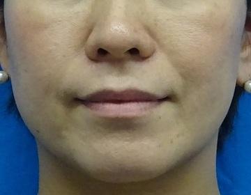 TCB東京中央美容外科の顔のしわ・たるみの整形(リフトアップ手術)の症例写真[ビフォー]