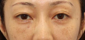 湘南美容クリニック 銀座院の目元の整形、くま治療の症例写真[アフター]