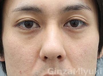 銀座みゆき通り美容外科の目元整形・クマ治療の症例写真[ビフォー]