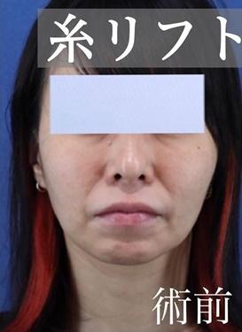 銀座長瀬クリニックの顔のしわ・たるみの整形(リフトアップ手術)の症例写真[ビフォー]