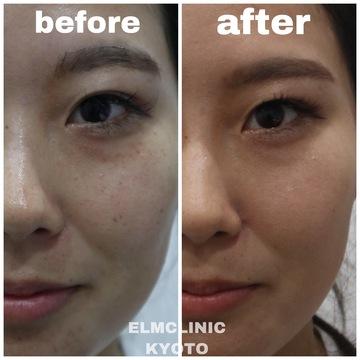 美容皮膚科  エルムクリニック京都院のシミ治療(シミ取り)・肝斑・毛穴治療の症例写真